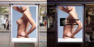 Mamograf vidi više nego oko